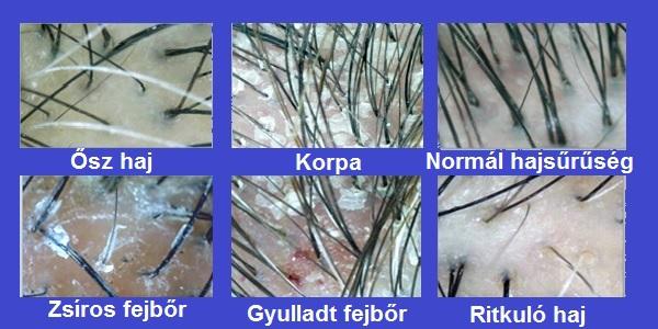 vörös foltok és a fejbőr hámlása pikkelysömör kezelése a fórumon belülről